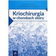 KRIOCHIRURGIA W CH SKÓRY