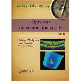 OPTYCZNA KOHERENTNA TOMOGRAFIA 2