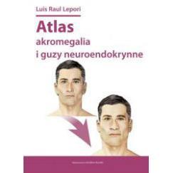 ATLAS AKROMEGALIA I GUZY NEUROENDOKRYNNE